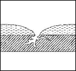 Nadelstiche